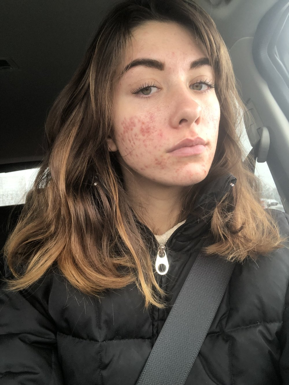 About 2 months into this period. I decided to go out without makeup to see if I felt any differently. NOPE. I didn't. And people didn't treat me any differently.