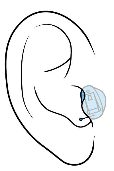 CR-BG-Hearing-Aid-SBS-Completely-In-Canal-Siemens.jpg