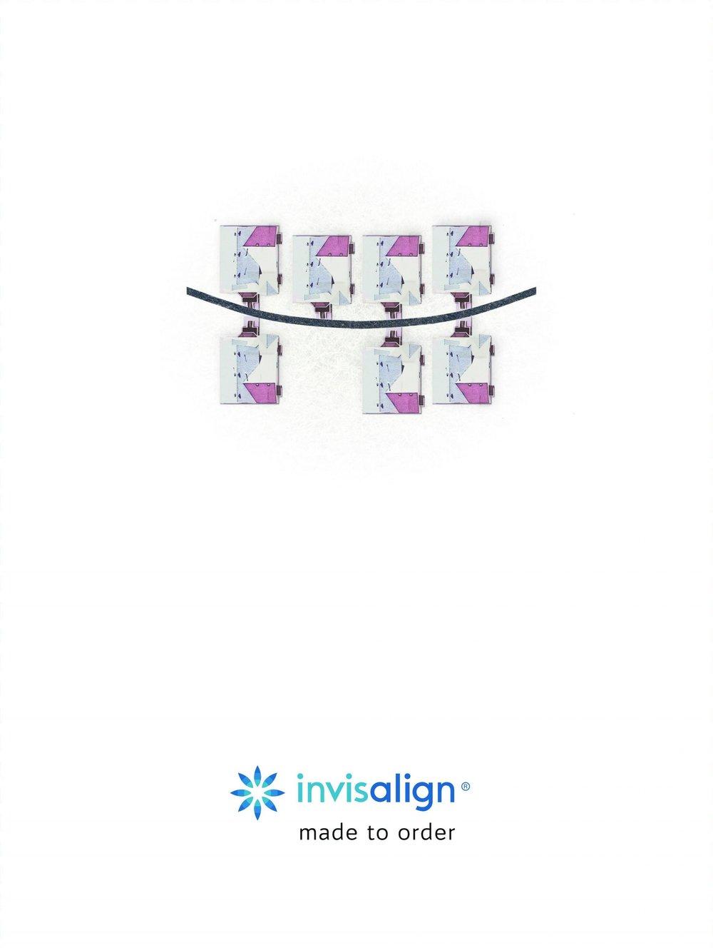 invisilign.03.jpg