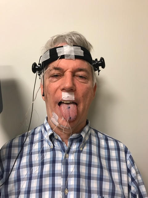 Stephen Winthrop, showing off his electrodes during a clinical trial. (Photo courtesy of Stephen Winthrop)