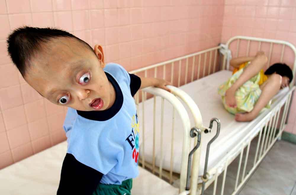 vietnam_vietnamese-defoliant-agent-orange-victims-peace-village-ho-chi-minh-citycribweb_0.jpg