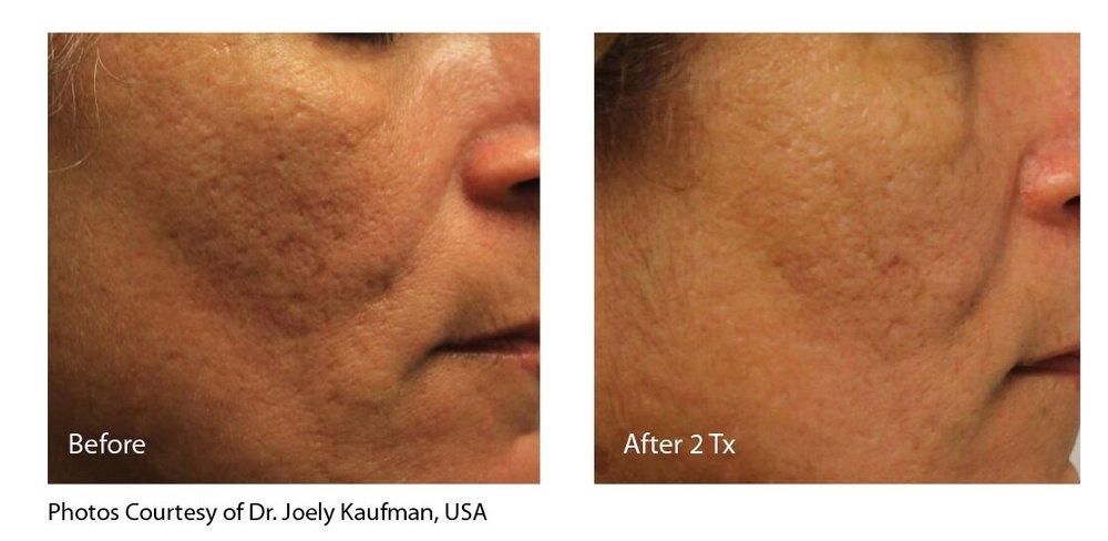 Kaufman Acne Scar.jpg