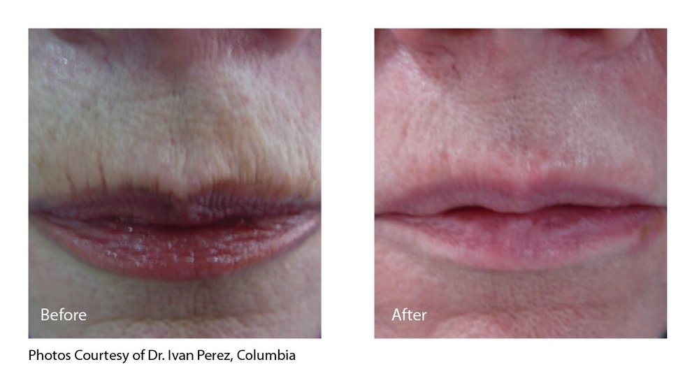 Perez Lips.jpg