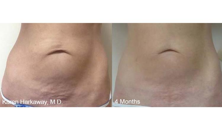 Karen-Harkaway_4-Months_Stomach.jpg