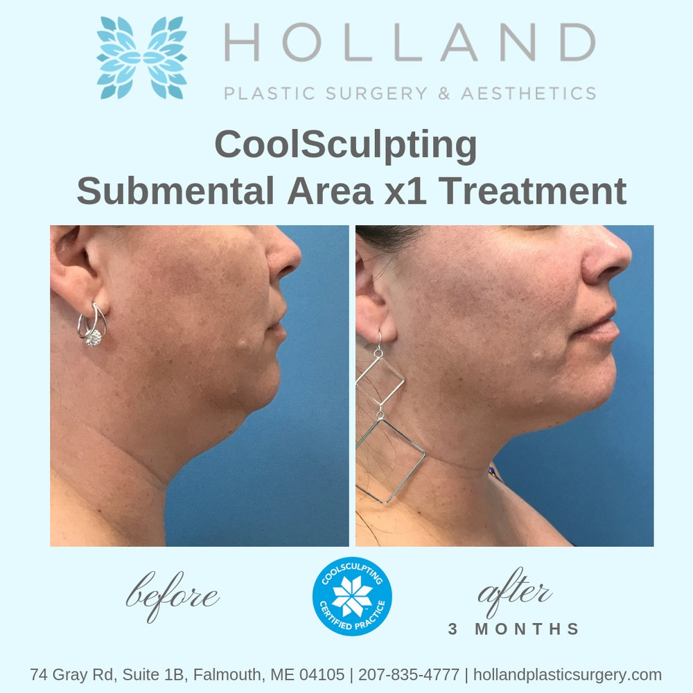 P.M. CoolSculpting Submental.jpg