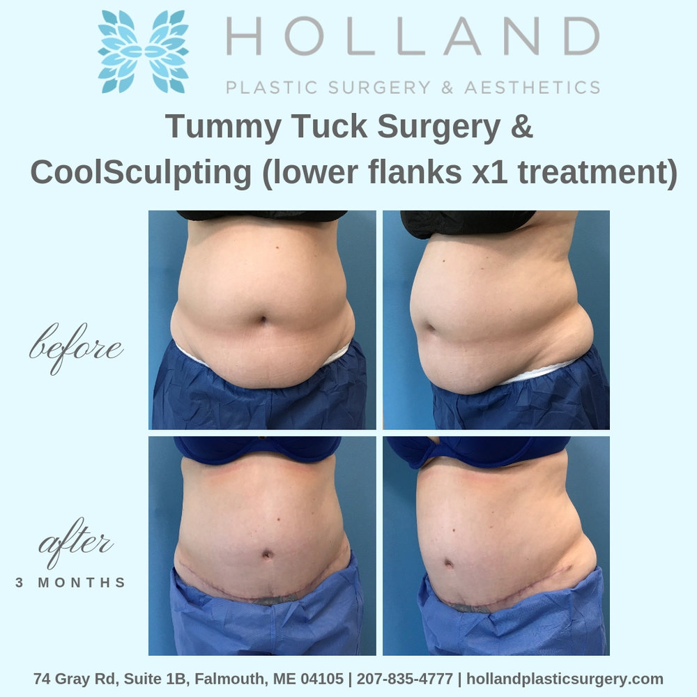P.M. Tummy Tuck & Flanks.jpg