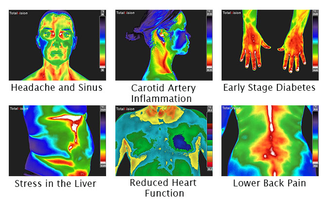 thermography.jpg