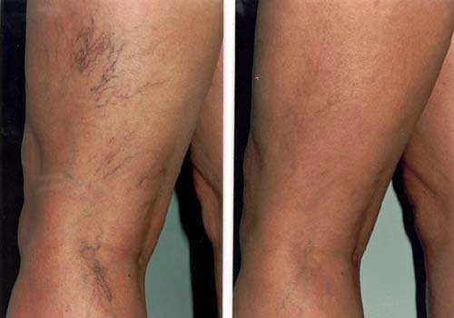Series of Laser Vein Treatments