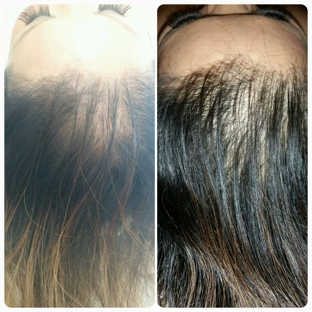 Jade Hair Detox Treatment (1 tx) Jade hair detox is a process that detoxes the hair shaft and stimulates oxygen and blood flow to the scalp using cold laser, infrared, LED and oxygen.