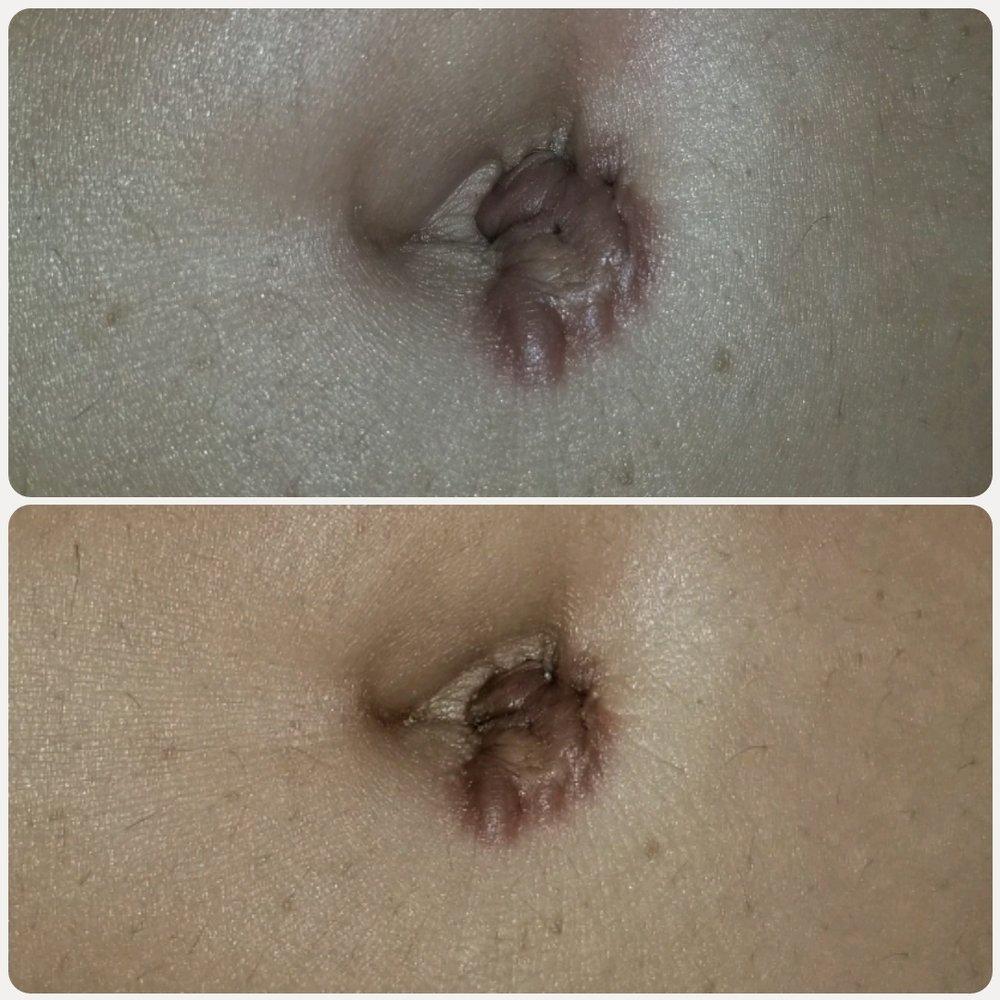 Keloid/Scar Treatment