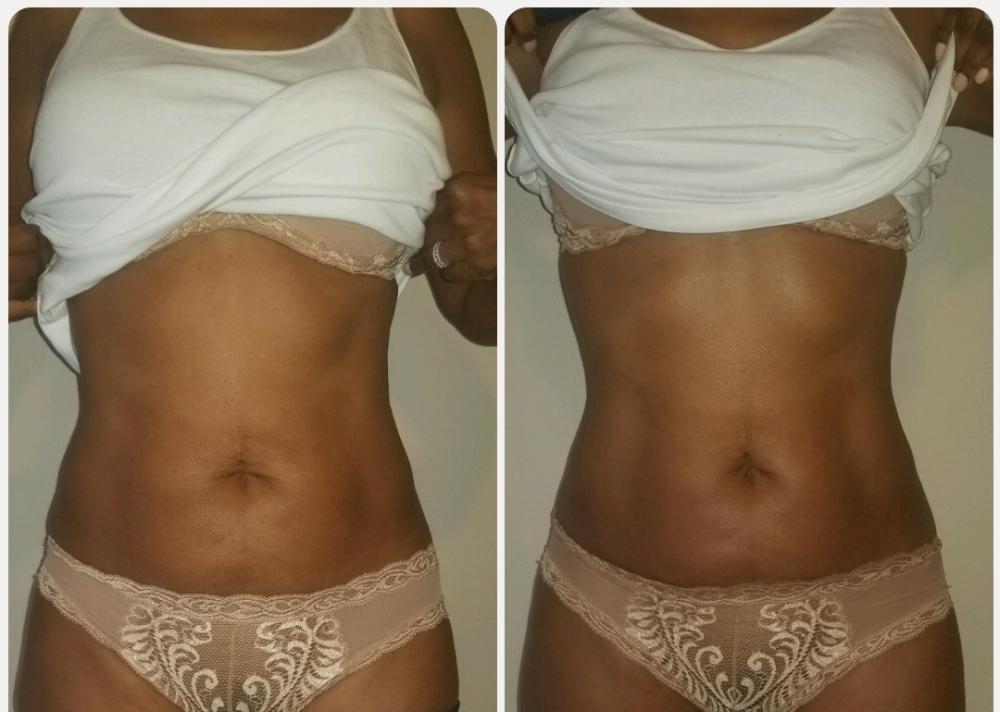 Sculptor Body Contour with Jade (1 tx) Sculptor Body Contour uses Jade detox and infrared to stimulate the body's detox channels allowing the body to rid itself of toxins and excess fluid which can stimulate inch and weight loss.