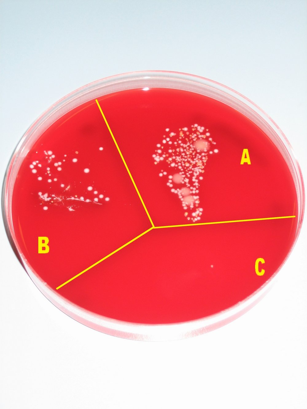 """  Microbial growth on a blood   agar plate   without any procedure (sector A), after washing hands (sector B), and after disinfecting hands with alcohol (sector C).""    You can see that washing hands with just soap and water barely does anything to prevent disease being spread from doctor to patient, while full disinfection does a very good job."