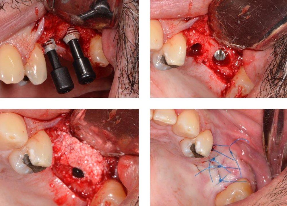 1) Implantes Bicon previos a su definitiva impactación, 2) Los implantes Bicon colocados, sin el transportador de polietileno negro, 3) Material de injerto óseo cubriendo los implantes y el defecto que se muestra en la pared vestibular, 4) Sutura cubriendo el injerto y los implantes.