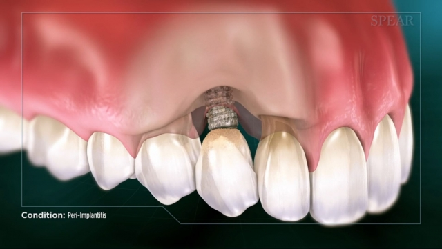La periimplantitis provoca la pérdida del hueso alrededor del implante y puede provocar la definitiva pérdida del implante dental.
