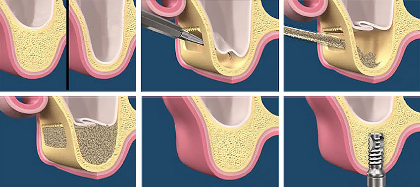 La técnica de elevación de seno maxilar requiere un cirujano con conocimientos avanzados y puede llevar casi un año de tiempo hasta que el hueso está preparado para alojar un implante dental. Llos costes de la cirugía son elevados.