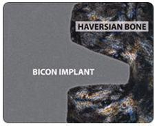 hueso alrededor implante dental