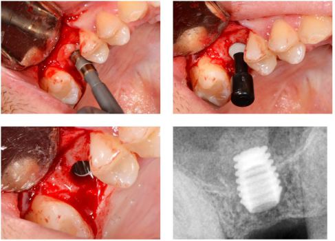 1. Fractura del piso de seno con Osteotomo. 2. Colocacion del implante empujando Injerto óseo con PRF y Xenograft. 3. Elevación del conjunto con el Implante Bicon de 5×6. 4. RX del implante recien colocado  .
