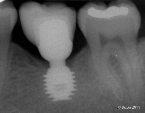 Implante 6.0x5.7 con una Corona de Composite. 7 años en función.