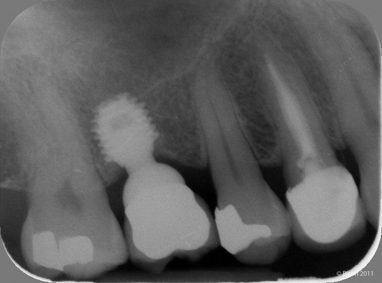 Implante Corto Bicon de 6.0x5.7 con una corona metal-cerámica tras 12 años en función