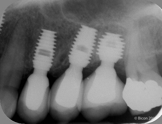 Tres implantes cortos Bicon tras 6 años en función