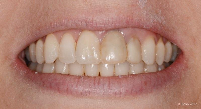 Sonrisa de la paciente previa a la exodoncia