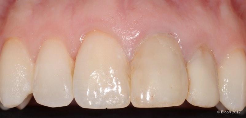 Vista previa a la exodoncia