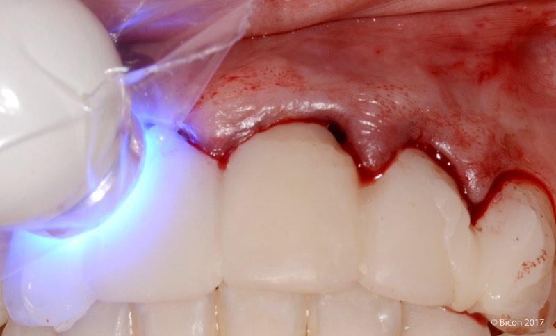 Fotopolimerización de la prótesis temporal