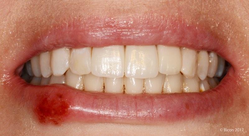 Sonrisa de la paciente tras la colocación de las tres coronas