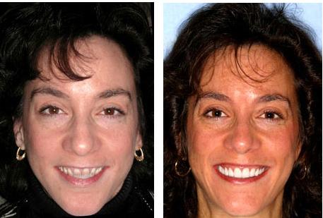 Testimonial: Dental Tourism Colombia - Teeth / Tooth Implants, Veneers, Crowns