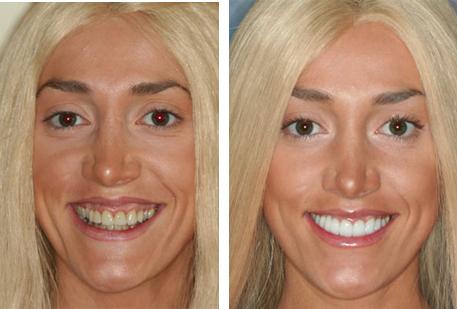 Testimonial 3: Dental Tourism Colombia - Teeth / Tooth Implants, Veneers, Crowns