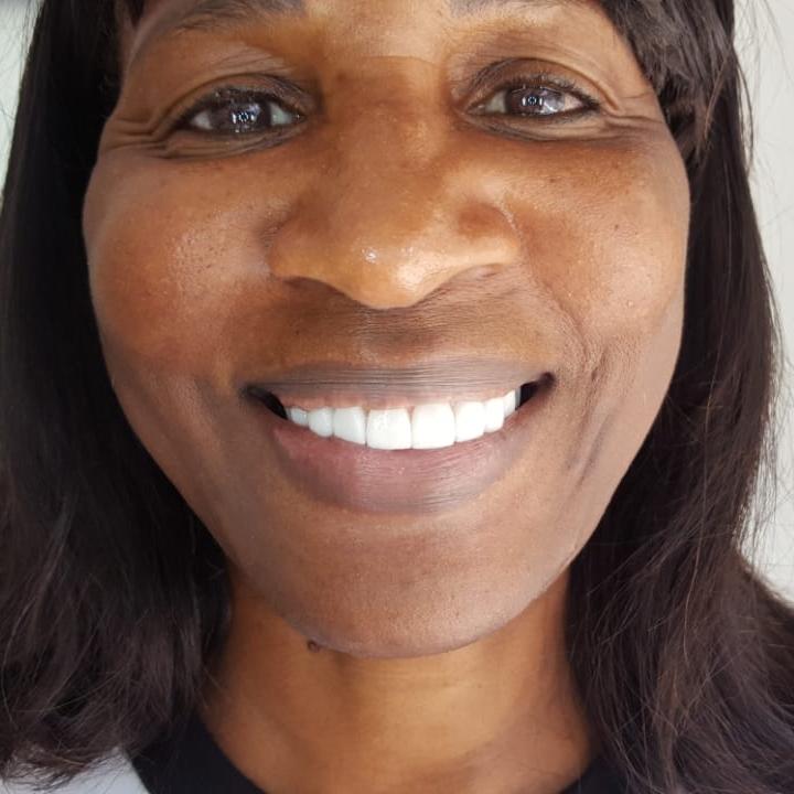 Constance Porcelain Veneers Dental Tourism Colombia Cartagena Testimonial Review