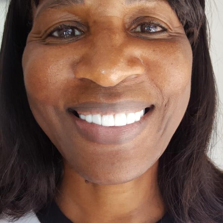 Constance Implants Dental Tourism Colombia Cartagena Testimonial Review