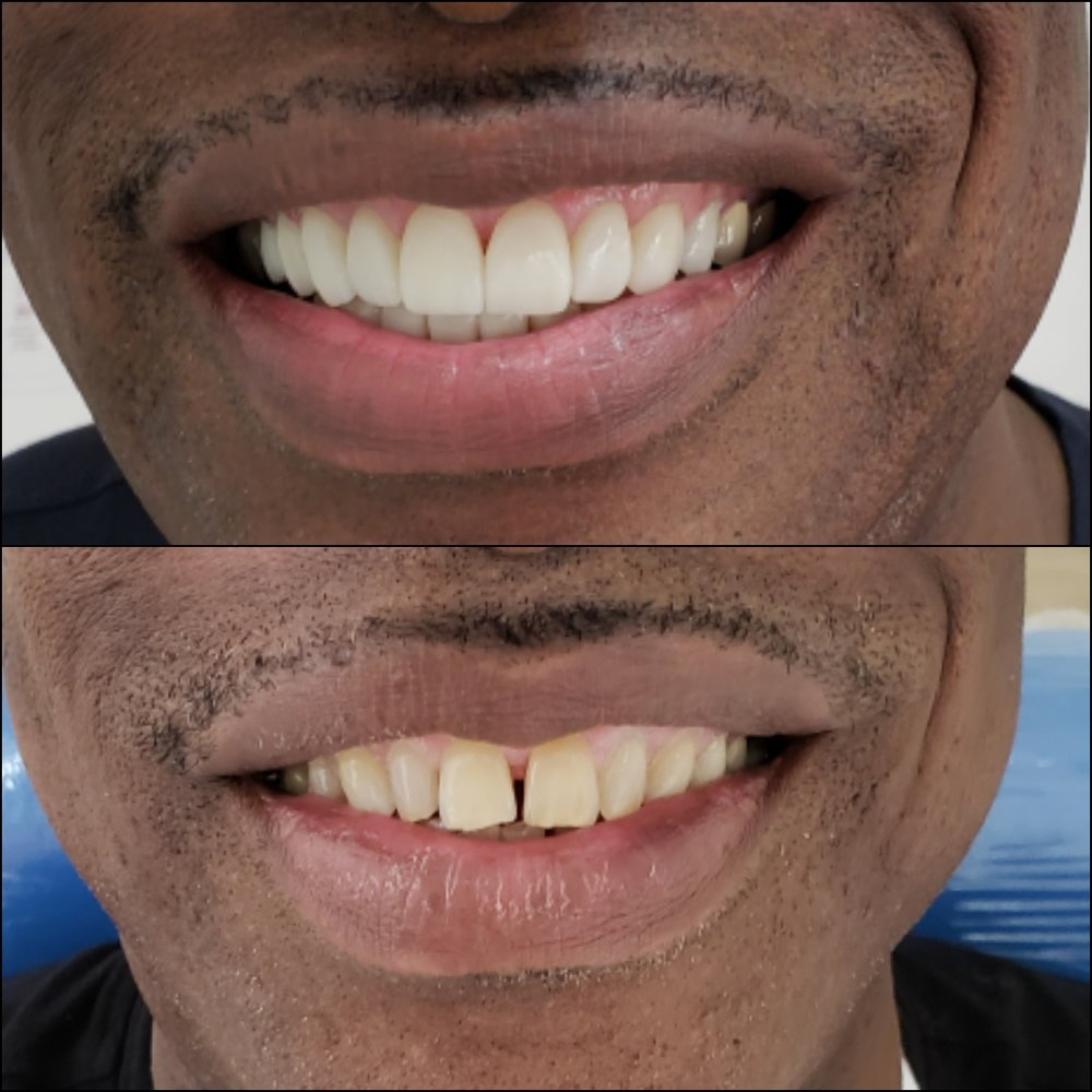 Ronald Porcelain Veneers Before After Testimonial Review - Dental Tourism Colombia (Dr. Julio Oliver, Cartagena)