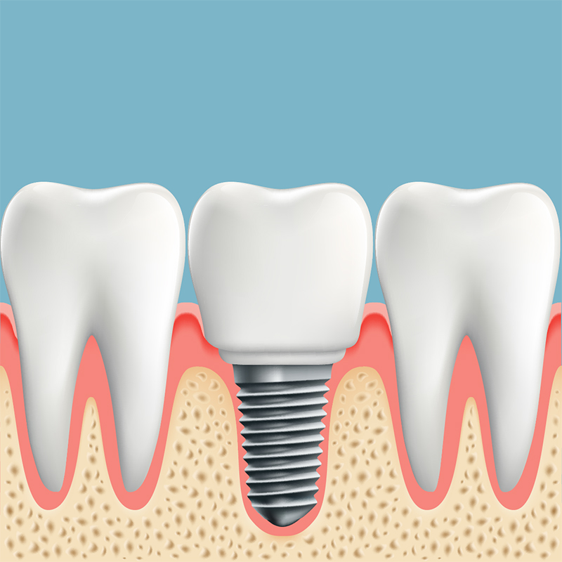 Calculating The Cost Of Dental Implants In Medellin, Colombia 5
