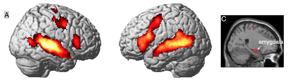 Emotional narratives trigger strong activation in the amygdala, temporal lobe, thalamus (network linked to emotional processing of sound stimuli) and other cortical regions, including language areas and motor cortices.