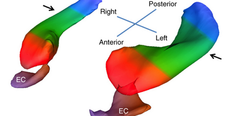 "3D-reconstructed hippocampus. The DG is in brown. EC stands for ""entorhinal cortex"", which suffers from dysfunction in Alzheimer's disease. Source: Fig 1 of paper."