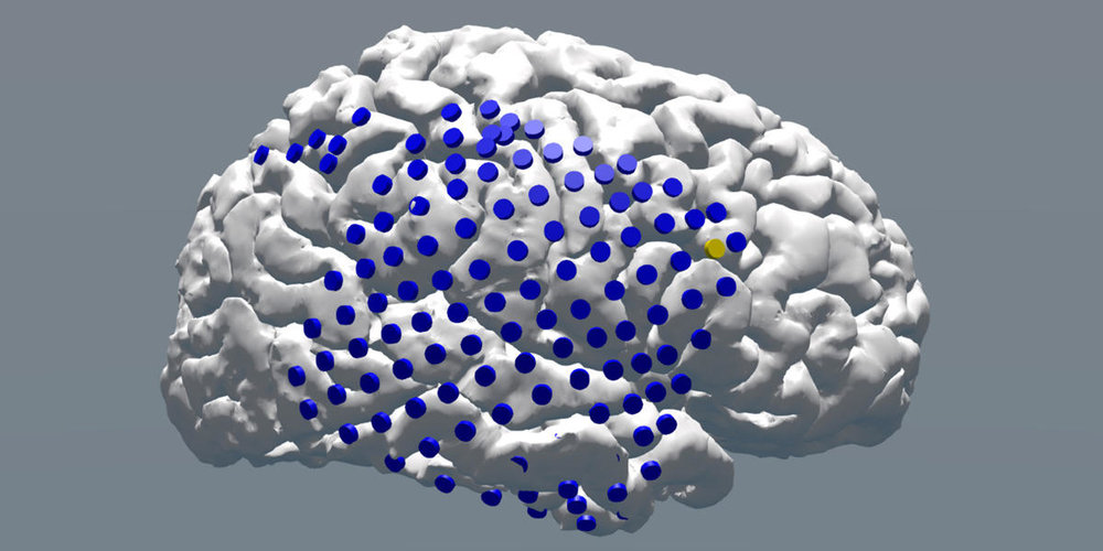 A team of University of Pennsylvania neuroscientists showed for the first time that electrical stimulation delivered when memory is predicted to fail can improve memory function in the human brain. Here, the blue dots indicate overall electrode placement; the yellow dot (top-right corner) indicates the electrode used to stimulate the subject's brain to increase memory performance. (Image: Joel Stein and Youssef Ezzyat)