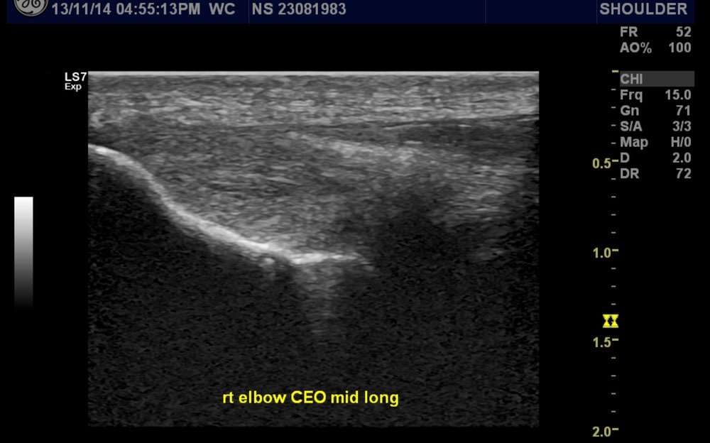 Healed Elbow Common Extensor Origin Tendon (Tennis Elbow) Tear Post-Injection