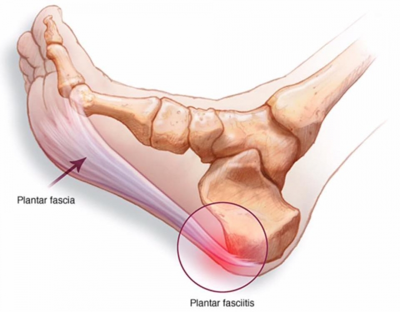 Plantar Fasciitis — The Body Restoration Studio