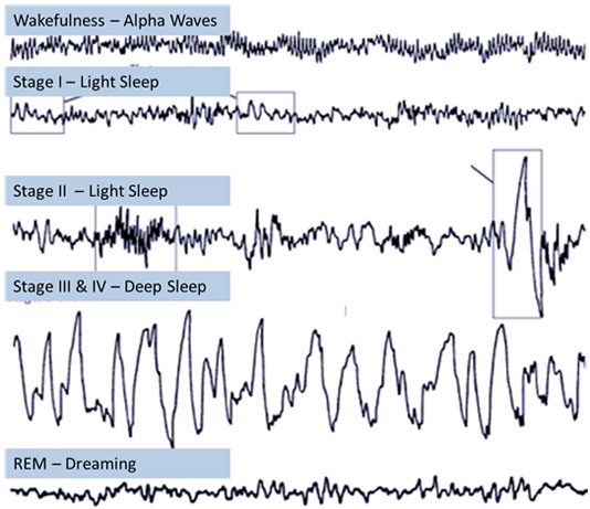 Brain waves observed during the different stages of sleep. Stage III and IV, also called Deep Sleep or Slow Wave Sleep is the most restorative part of sleep. Enhancement of this fundamental physiological process is at the core of the DeepWave Tech. solution.