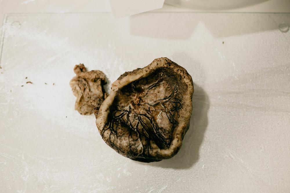 placenta-7.jpg