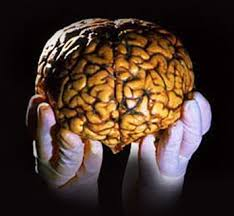 The limited human brain