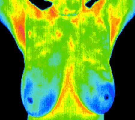 breast thermo.jpg