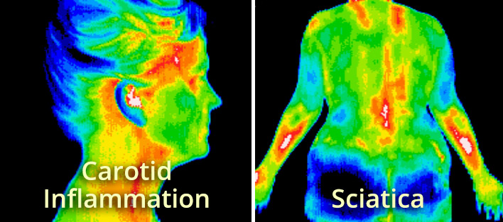 Thermography-Types-2.jpg