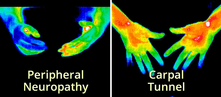 Thermography-Types-3.jpg