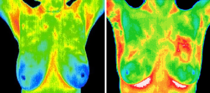 Breast-Thermography-Healthy-Unhealthy.jpg