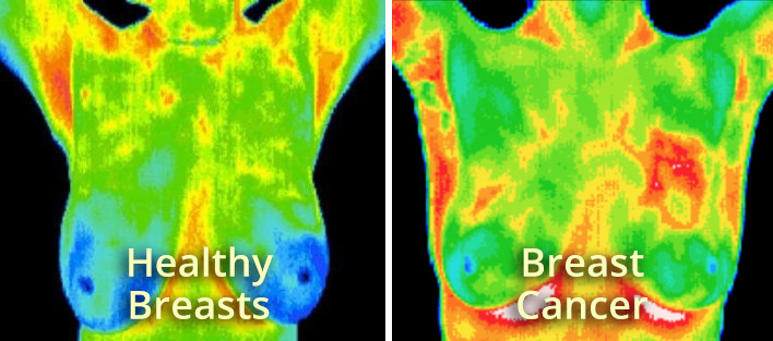 Thermography-Types-1.jpg