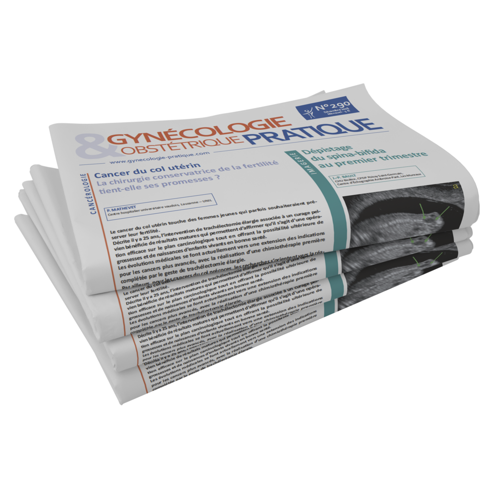 03_Newspaper Mock-up_GYNECO.png