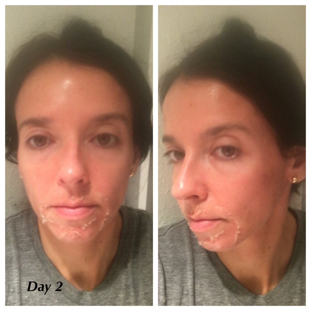 Peeling started around the mouth. You are sent home with a VI Derm Cleaner, a VI Derm Post Peel Protectant, and SPF. The step-by-step guide is easy to follow. The hardest part was not peeling away the dead skin.