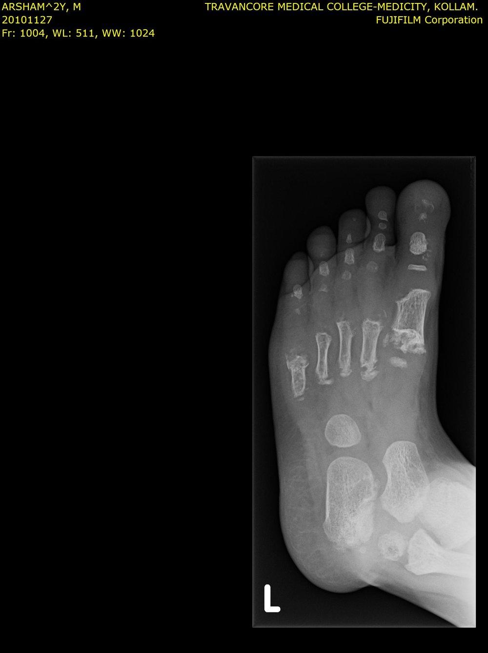 arshu_foot.jpg